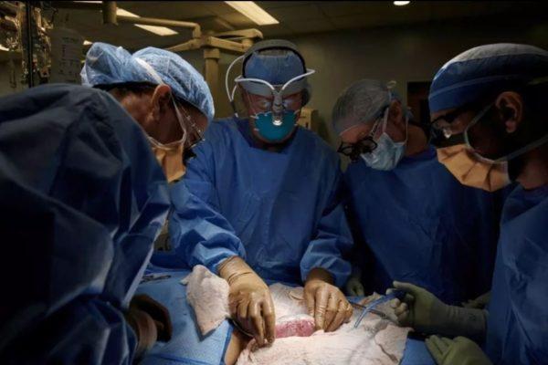 В США хирурги впервые пересадили человеку почку генно-модицированной свиньи